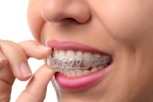 orthodontic treatment - clear braces